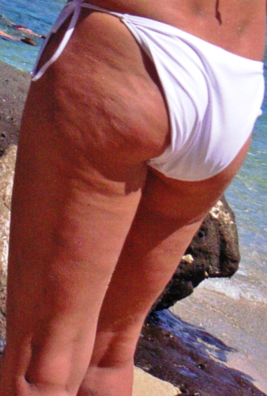 Dimpled_appearance_of_cellulite