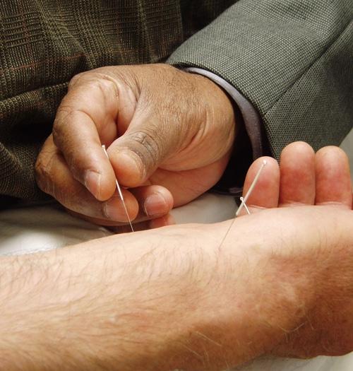 Akupunktura - tradiční čínská medicína