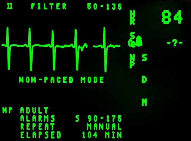 electrocardiogram-16948_640