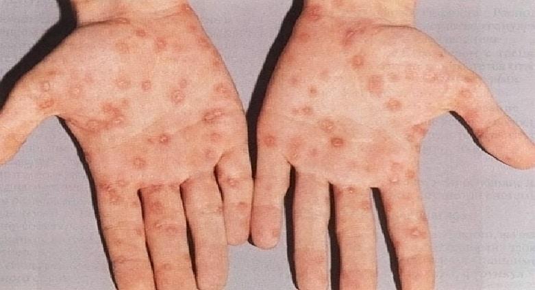 mononukleóza