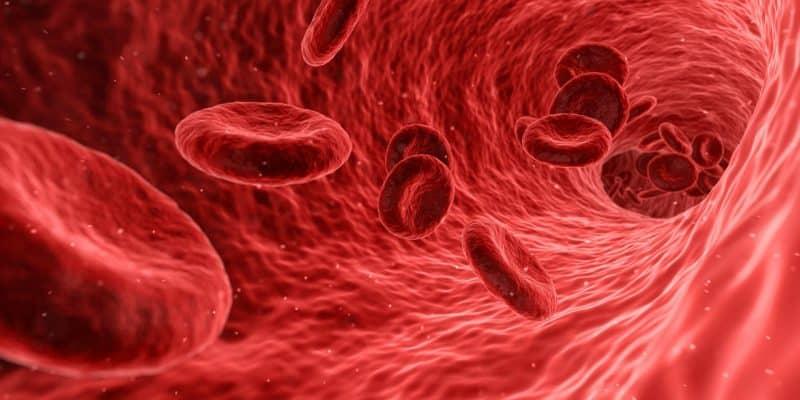 Anémie - ovlivňuje kromě okysličení orgánů i něco dalšího?